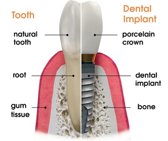 Dental Implant Comparison to a Natural Tooth